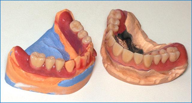 Техника изготовления съемных зубных протезов и применяемый материал